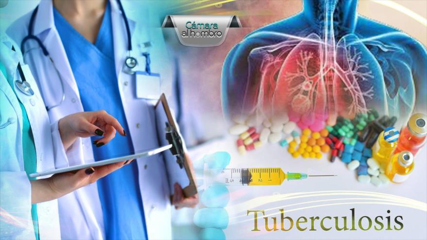 Cámara al Hombro: La tuberculosis: un drama para más de 30 000 peruanos