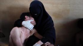 Fotos que sacuden al mundo: Madre que abraza el debilitado cuerpo de su hijo