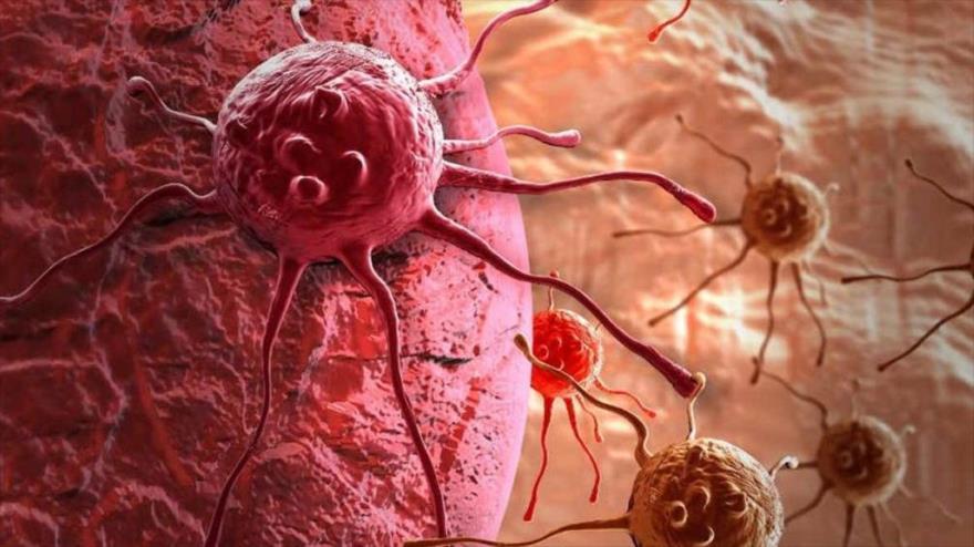 Los especialistas del Fondo Mundial de Investigación del Cáncer proponen varios métodos para prevenir el riesgo de enfermedades oncológicas.