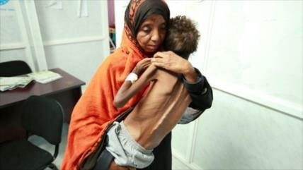 'Riad busca privar a Yemen de alimentos para obligarlo a rendirse'