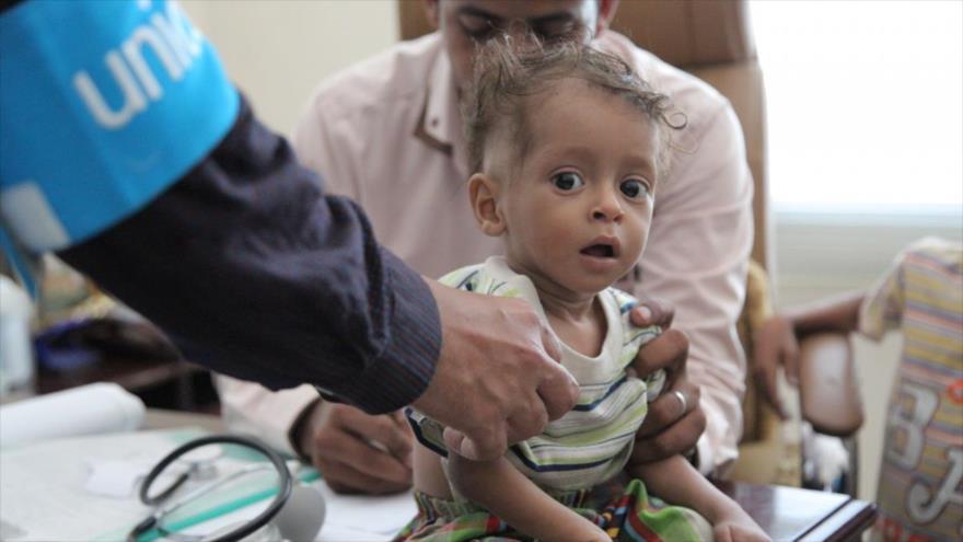 Organizaciones humanitarias advierten: Yemen al borde de hambruna