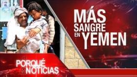 El Porqué de las Noticias: Guerra saudí contra Yemen. Tregua bajo tensión en Gaza. Sanciones de EEUU contra Rusia