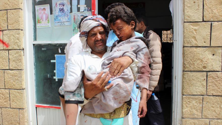 Niño yemení herido por ataque aéreo de Arabia Saudí a un autobús en la ciudad de Saada, 9 de agosto de 2018 (Foto: AFP).