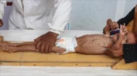 Crisis siria. Día de Tasua. Hambruna en Yemen. Sismos en México