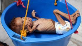 Alertan de que Yemen no tendrá alimentos dentro de 2 o 3 meses