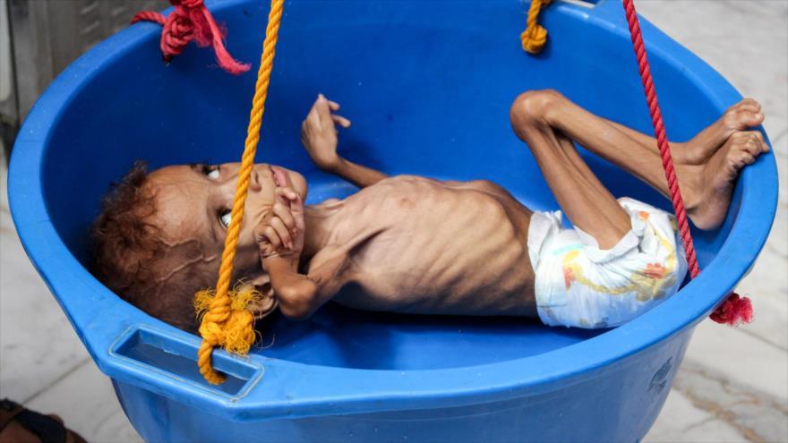 Un niño yemení sufre de desnutrición en un distrito de la provincia de Hajjah (noroeste), 19 de septiembre de 2018.(Foto: AFP)