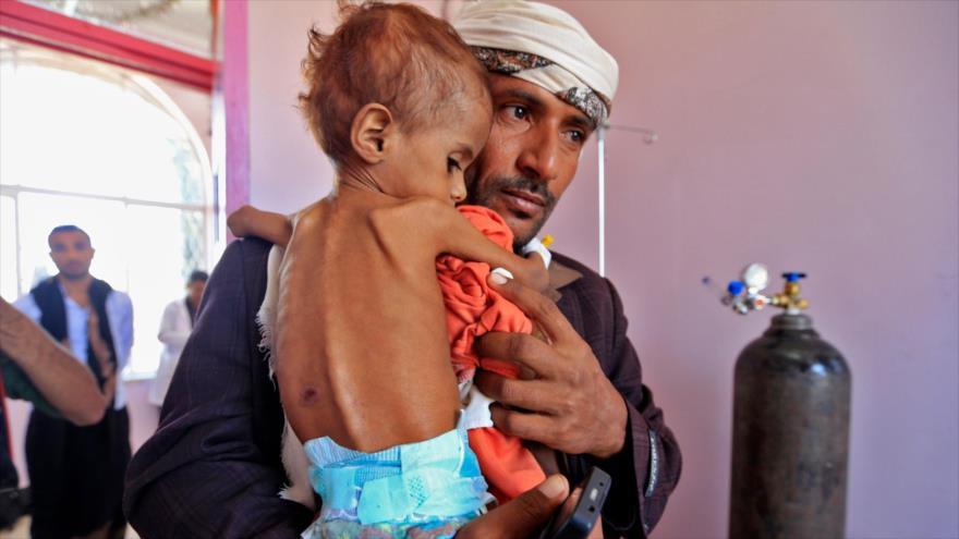 'Arabia Saudí apunta adrede a sitios yemeníes de producción alimentaria'