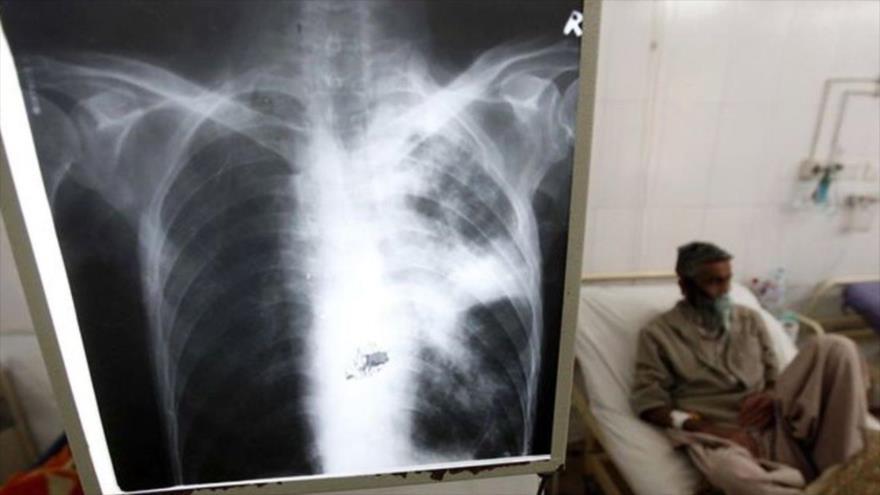 Un nuevo antibiótico puede curar tuberculosis multirresistente | HISPANTV