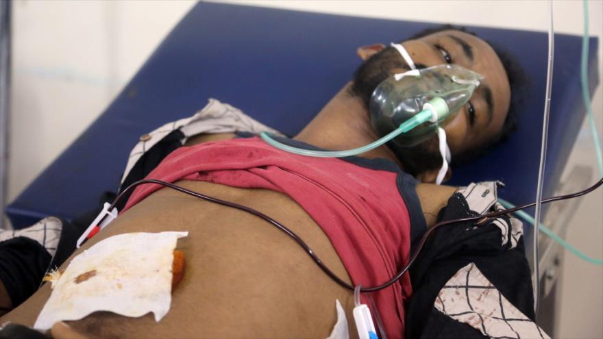 Un yemení, herido en un ataque aéreo saudí, recibe tratamiento médico en un hospital en Al-Hudayda (oeste), 21 de octubre de 2018. (Foto: AFP)