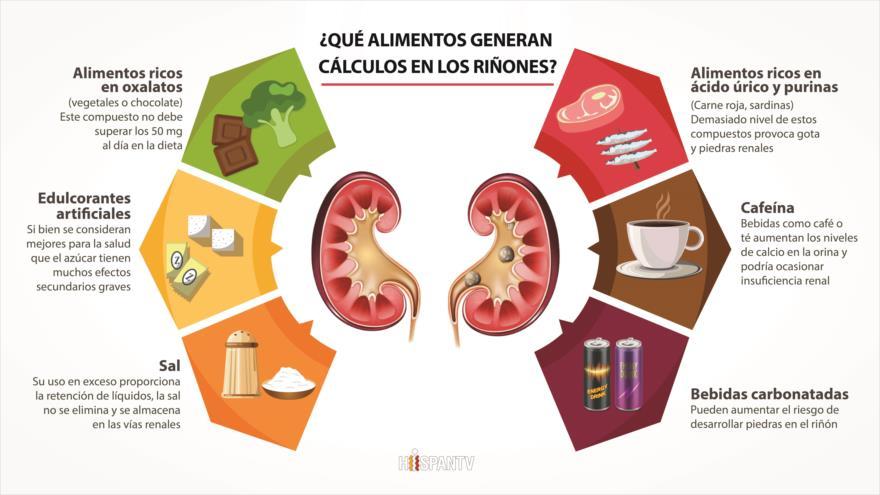 qué alimentos causan piedras en los riñones hispantv
