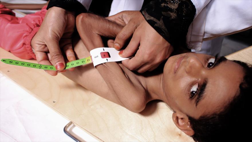 Una niña afectada por desnutrición, hospitalizada en Saná, la capital de Yemen, 6 de octubre de 2018.