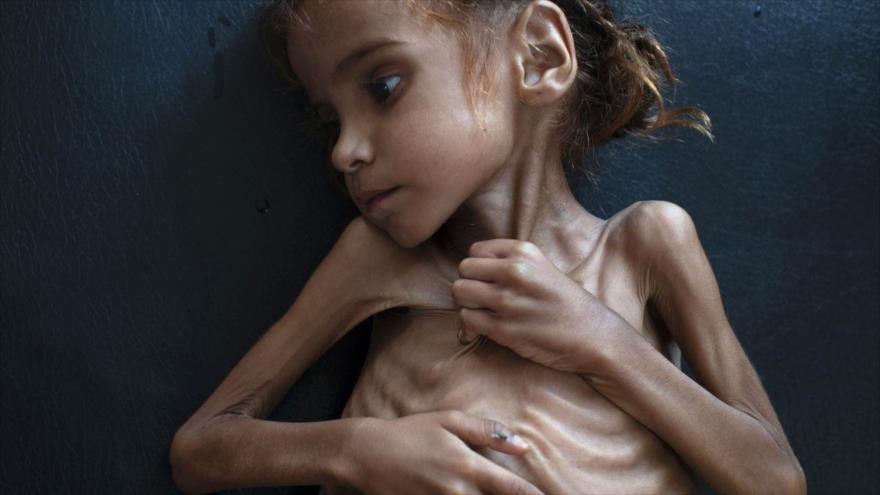 Amal Husein, niña yemení que murió después de una desnutrición severa.