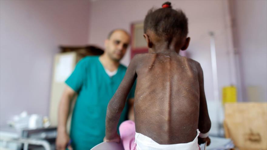 Un enfermero observa mientras pesa a una niña desnutrida en un centro en Saná, capital de Yemen, 7 de octubre de 2018. (Foto: Reuters)