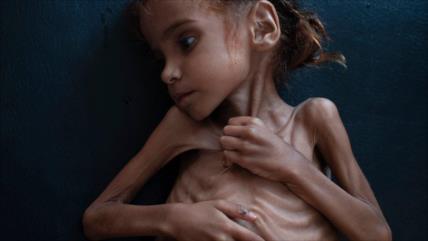 Vídeo: Murió la niña yemení Amal, símbolo de la hambruna en Yemen