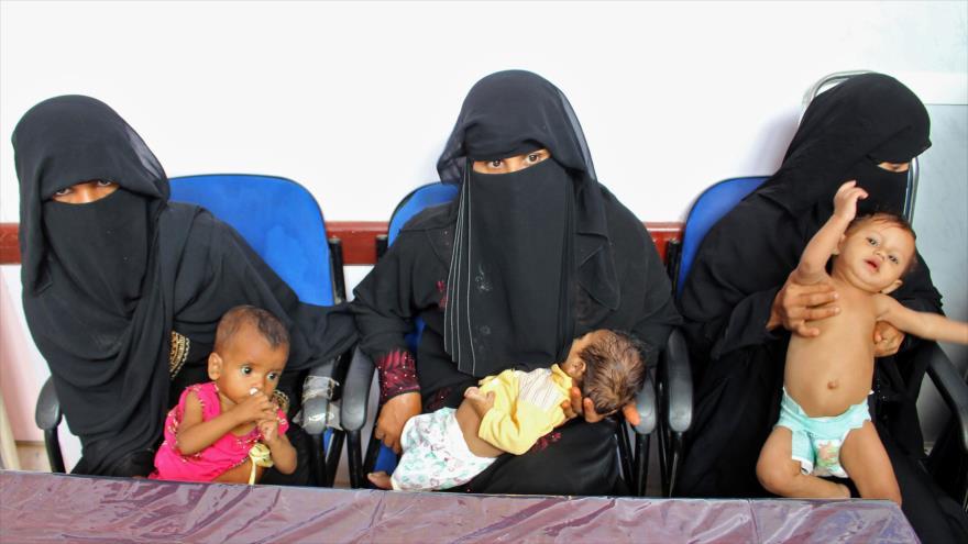 Niños con malnutrición en un hospital en el noroeste de Yemen, 7 de noviembre de 2018. (Foto: AFP)