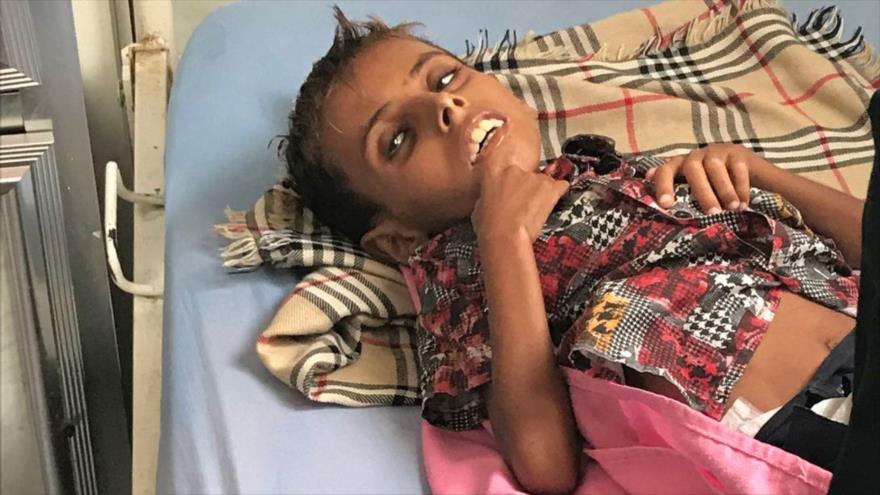 Adam, niño yemení que murió después de una desnutrición severa en la ciudad de Al-Hudaydah.