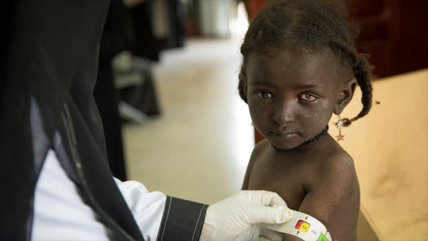 Expertos alertan de situación catastrófica de niños de Yemen