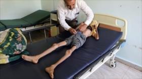 Merkel alerta: Yemen vive la peor catástrofe humanitaria del mundo