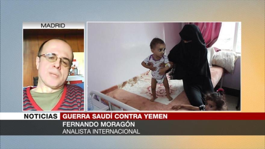 Moragón: Agresión a Yemen, uno de los peores errores de Bin Salman