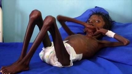 ONU: 20 millones de yemeníes padecen de inseguridad alimentaria