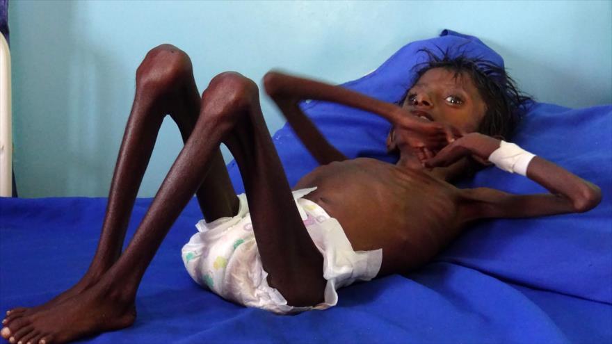 ONU alerta: 20 millones de yemeníes padecen de inseguridad alimentaria