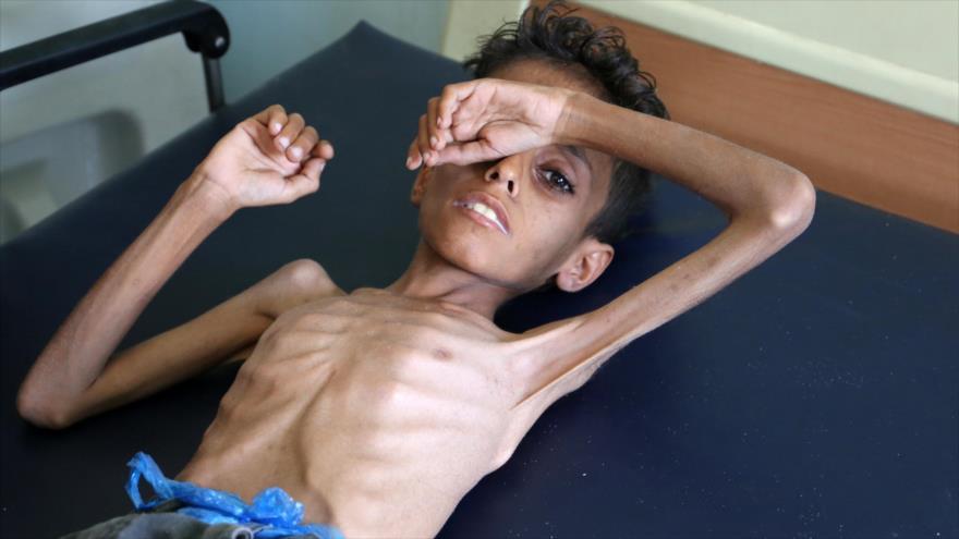 Un niño yemení yace en cama en un hospital en las afueras de la ciudad de Taiz, 30 de octubre de 2018. (Foto: AFP)