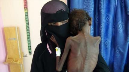 Yemen denuncia envío de alimentos 'en mal estado' por la ONU