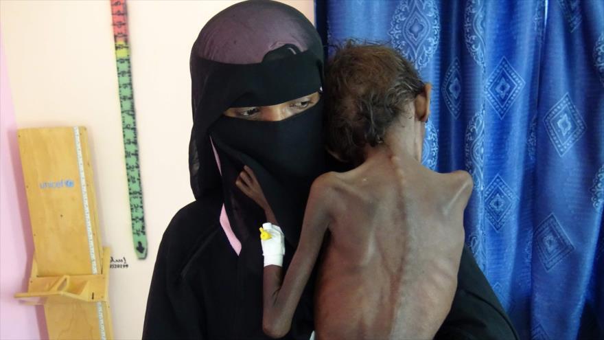 Ansarolá denuncia envío de alimentos 'en mal estado' por la ONU a Yemen