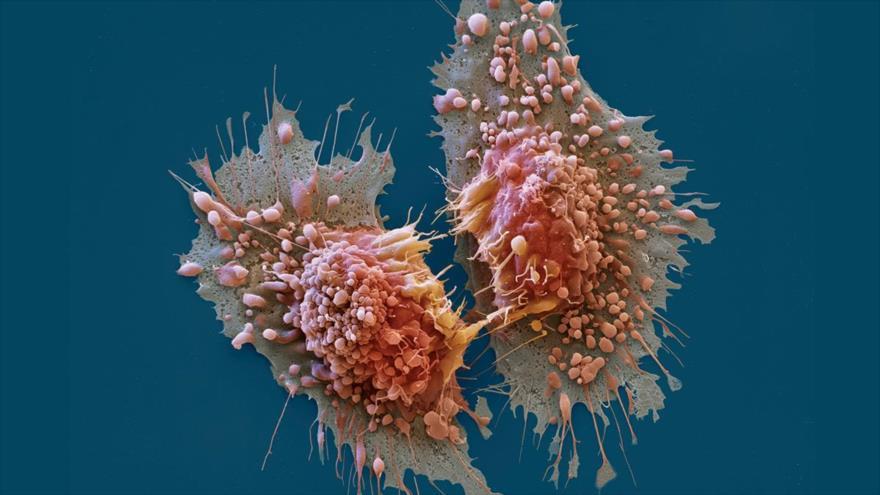 Científicos de Barcelona hallan un mecanismo que controla un conjunto de genes importantes que impulsan el cáncer.