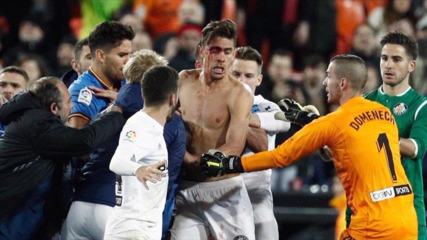 Gabriel Paulista, jugador de Valencia, sangrando tras el partido contra Getafe en la Copa del Rey en el estado Mestalla de Valencia.