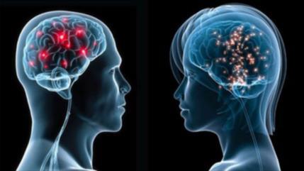 Estudio: cerebro femenino luce 3 años más jóven que el masculino