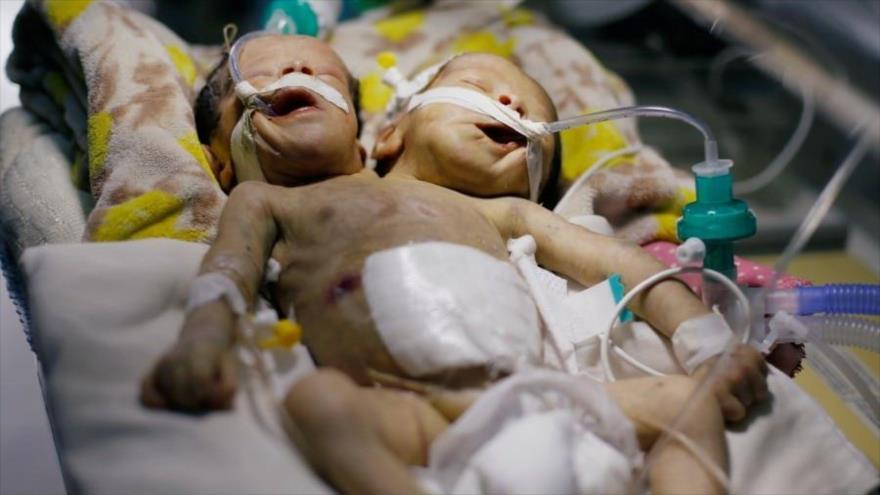 Bloqueo saudí a Yemen podría matar a recién nacidos gemelos yemeníes