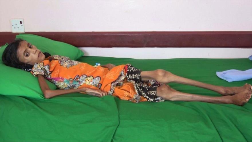 La niña Fátima, la cara más dramática de la guerra que azota Yemen