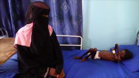 ONU: Más de 80 000 niños yemeníes han muerto de hambruna