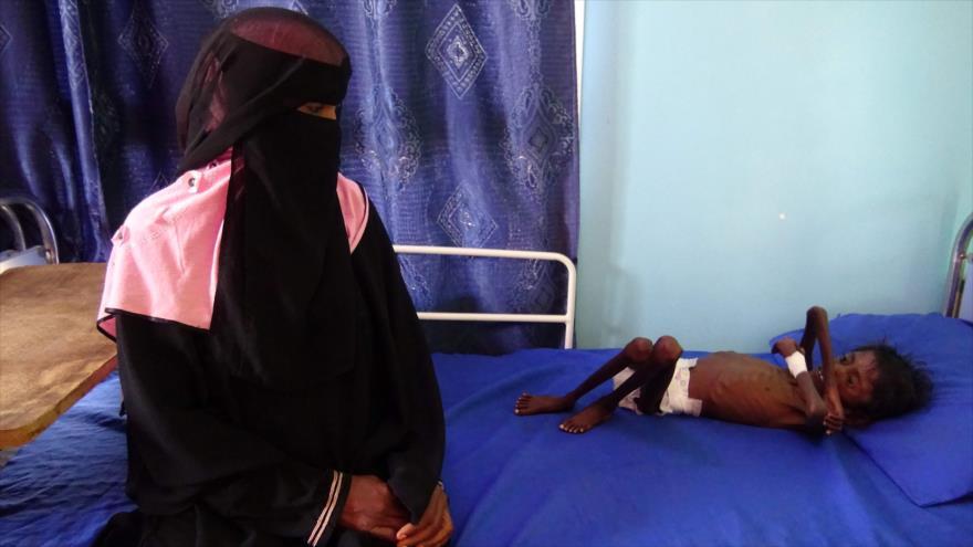 ONU: Más de 80 000 niños yemeníes han muerto de hambruna | HISPANTV