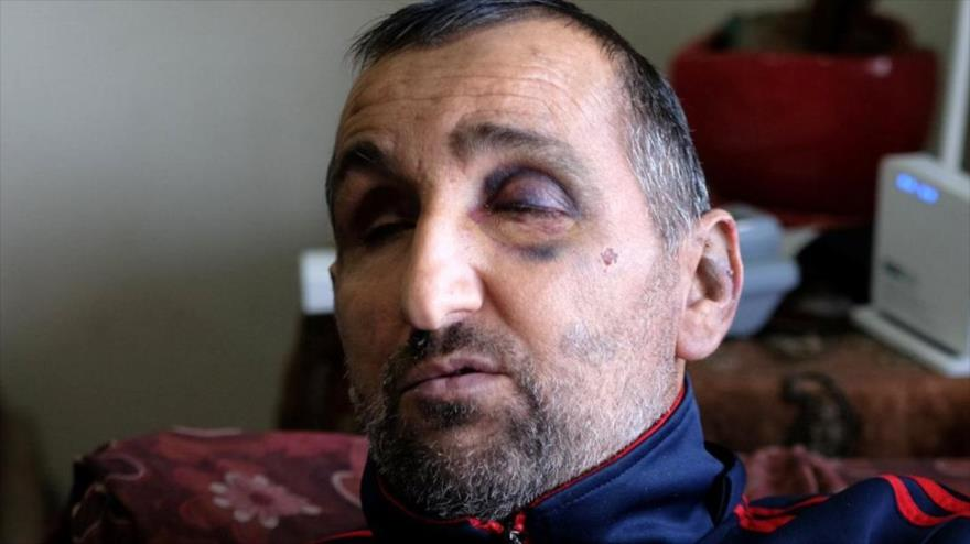 Vídeo impactante: Soldados israelíes golpean a un hombre ciego | HISPANTV