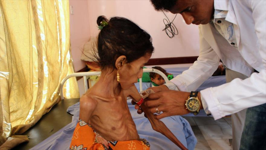 ONU alerta: Cada día, 8 niños mueren o resultan heridos en Yemen | HISPANTV