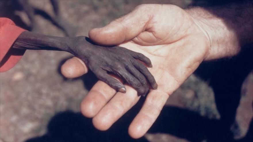 Fotos que sacuden al mundo: La mano del niño ugandés