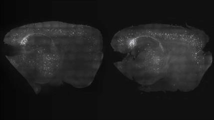 Luces y Sonidos: ¿Un posible tratamiento para el alzhéimer?