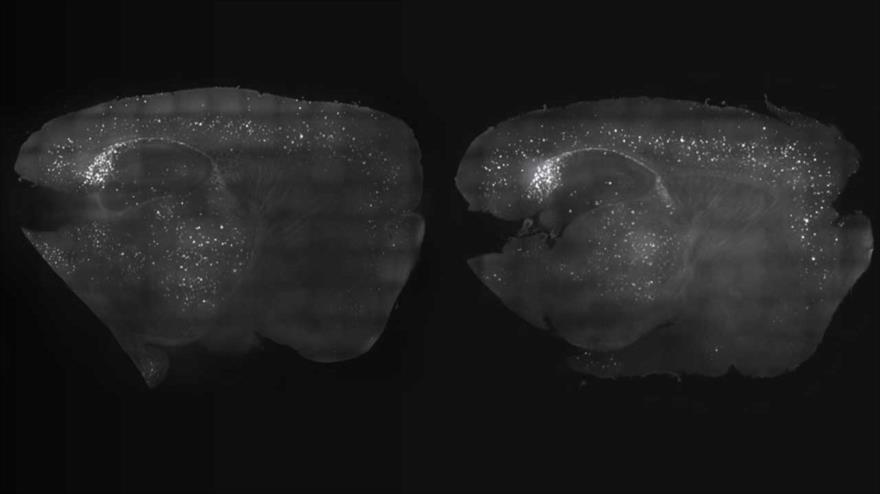 Comparación de cortezas cerebrales de dos ratones con (izda.) y sin tratamiento a base de estimulación visual y auditiva.
