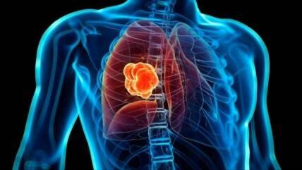 Crean herramienta para detectar tempranamente cáncer de pulmón