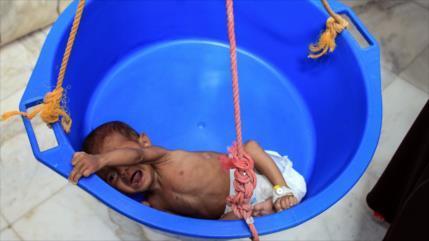 Yemen: 100 000 niños podrán morir en un año por la agresión saudí