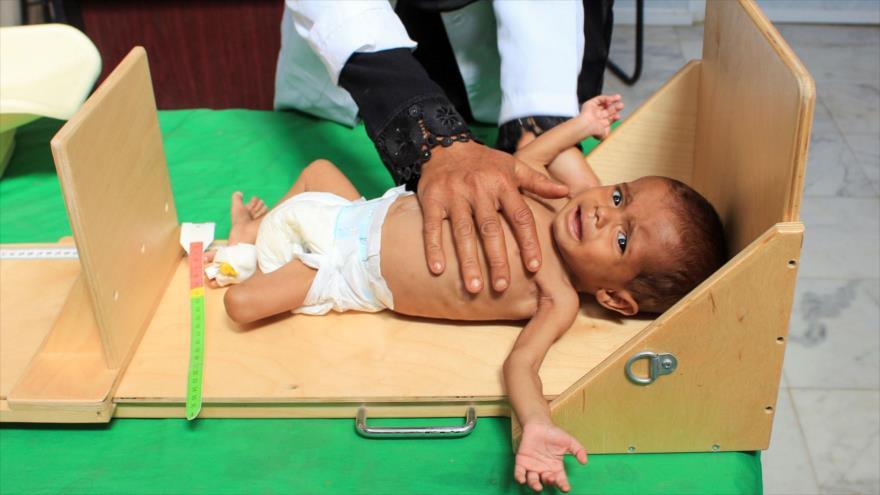 Un niño yemení que sufre de desnutrición severa se mide en un hospital en Hajjah, noroeste de Yemen, 26 de enero de 2019. (Foto: AFP)