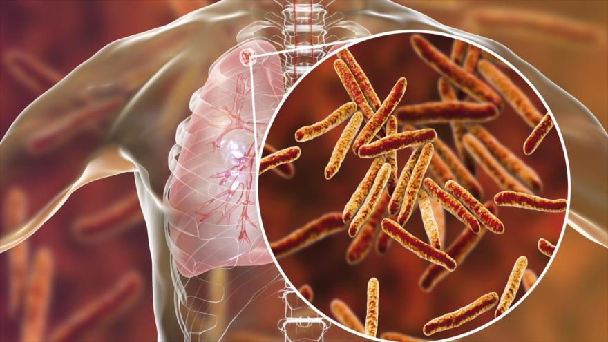 Bacteria de la tuberculosis en el cuerpo humano.