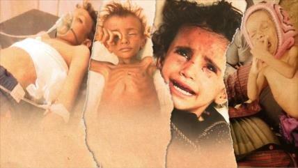 Aniversario mortal: 4 años de guerra contra la infancia en Yemen