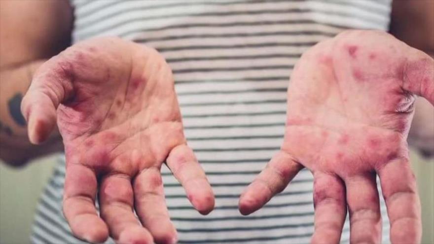 El sarampión, que anteriormente casi había sido erradicado totalmente, ha vuelto a aparecer en el mundo.