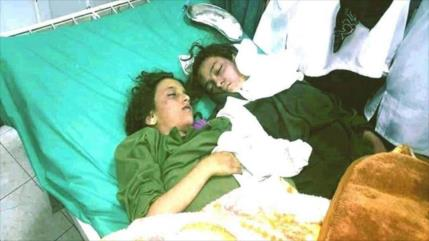 Mueren 13 yemeníes, incluidas varias alumnas, en ataques saudíes