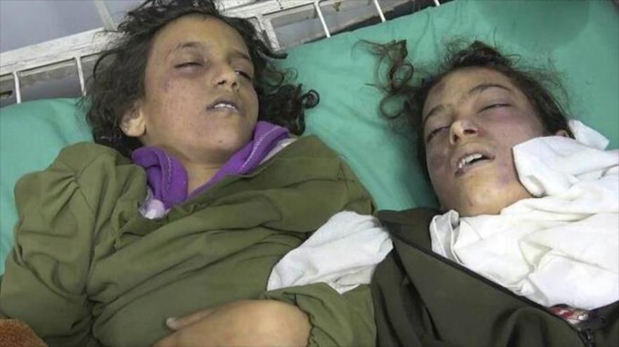 Niñas yemeníes muertas por el bombardeo saudí contra un colegio femenino de Saná (capital de Yemen), 7 de abril de 2019.