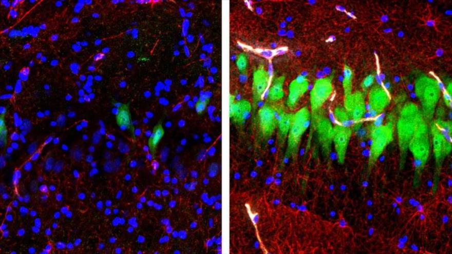 Células neuronales (verde) mueren rápidamente si no se tratan (izda.), pero, una tecnología pudo ayudar a mantenerlas vivas durante 10 horas (dcha).