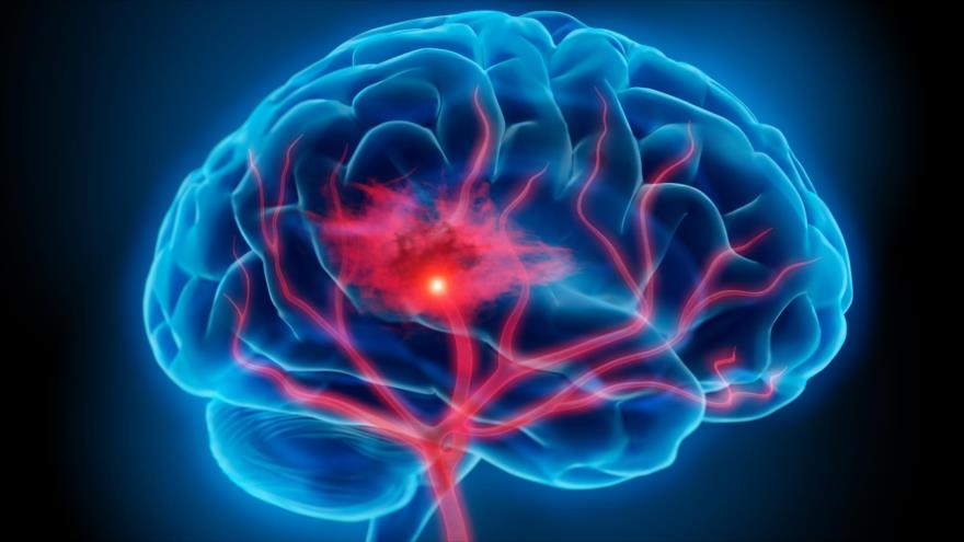 Actividad física puede prevenir el envejecimiento cerebral | HISPANTV